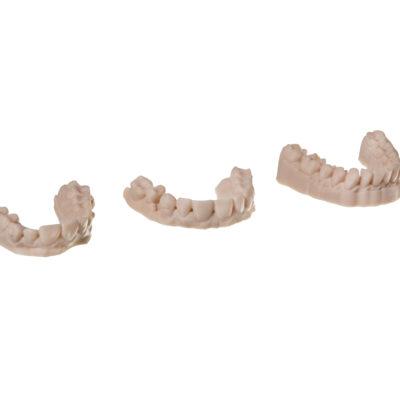 additive dental models